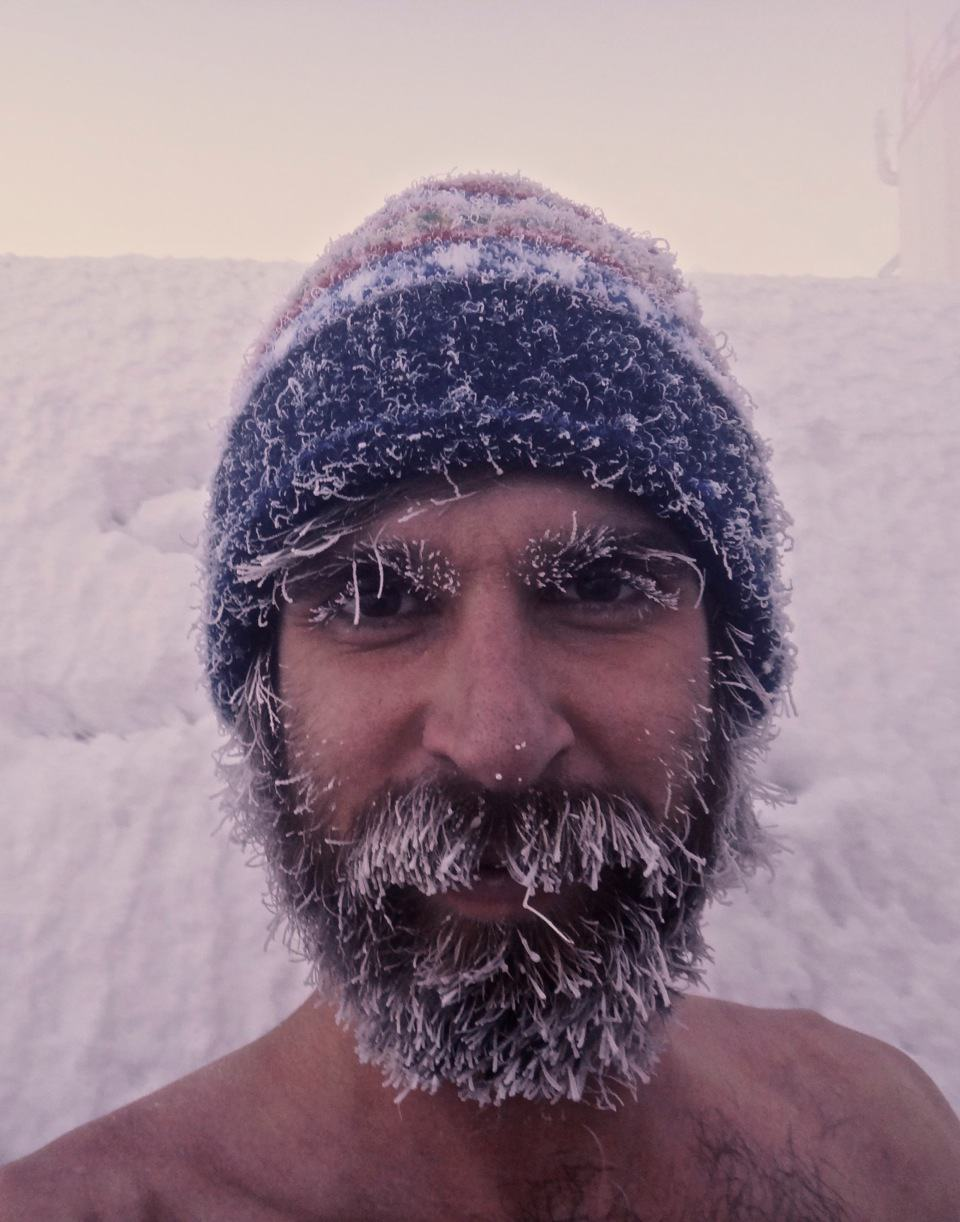 8 Photo S Of People With Crazy Frozen Hair Awesomejelly Com