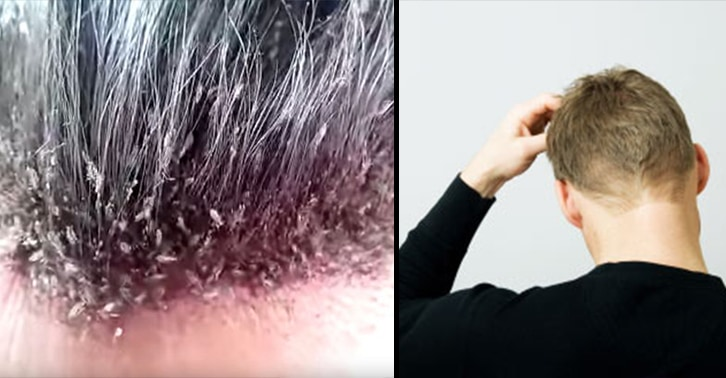The Most Disgusting Head Lice Infestation You Will Ever See