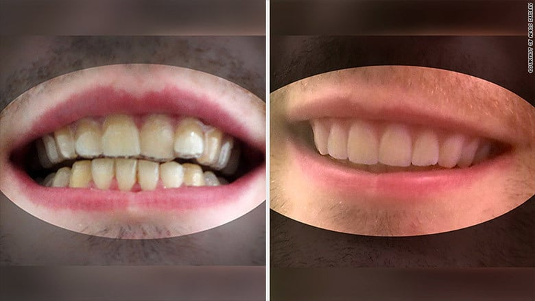 These 60 diy braces really work and could forever change how we dud7 solutioingenieria Choice Image